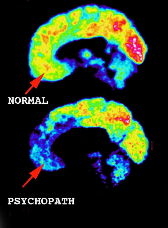 psycopath brain